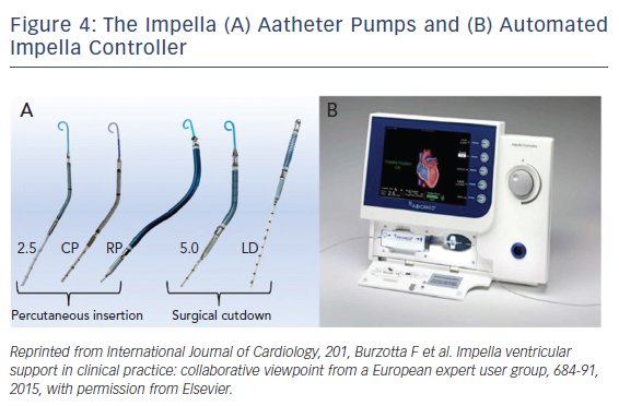 Figure 4: The Impella (A) Aatheter Pumps and (B) Automated Impella Controller