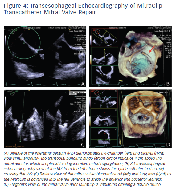 Figure 4: Transesophageal Echocardiography of MitraClip Transcatheter Mitral Valve Repair