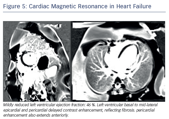 Figure 5: Cardiac Magnetic Resonance in Heart Failure