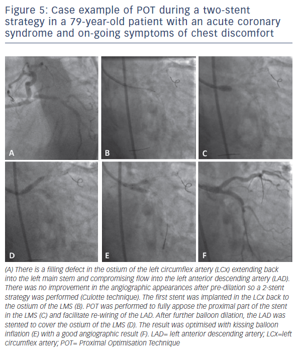 Figure 5: Case example of POT during a two-stent strategy in a 79-year-old patient with an acute coronary syndrome and on-going symptoms of chest discomfort