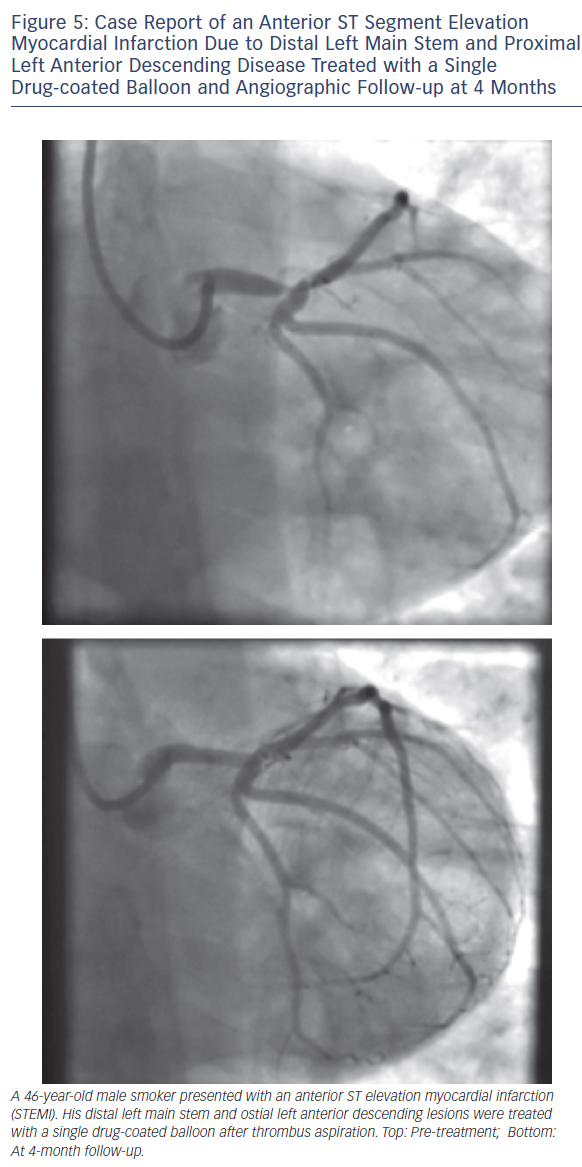 Case Report of an Anterior ST Segment Elevation Myocardial Infarction Due to Distal Left Main Stem and Proximal Left Anterior Descending Disease Treated with a Single Drug-coated Balloon and Angiographic Follow-up at 4 Months