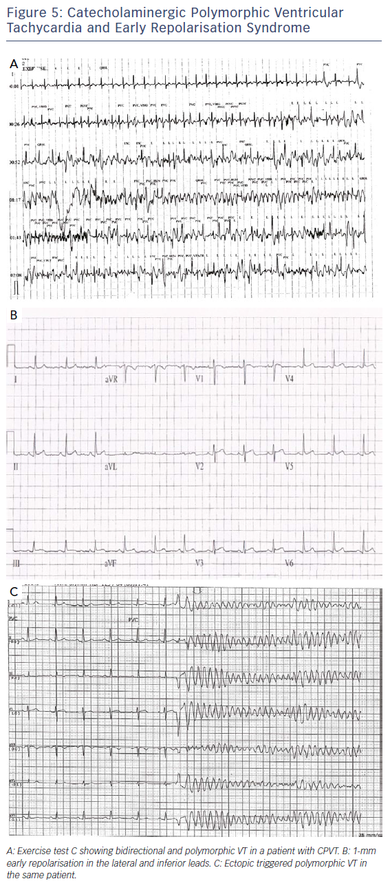 Figure 5: Catecholaminergic Polymorphic Ventricular Tachycardia and Early Repolarisation Syndrome