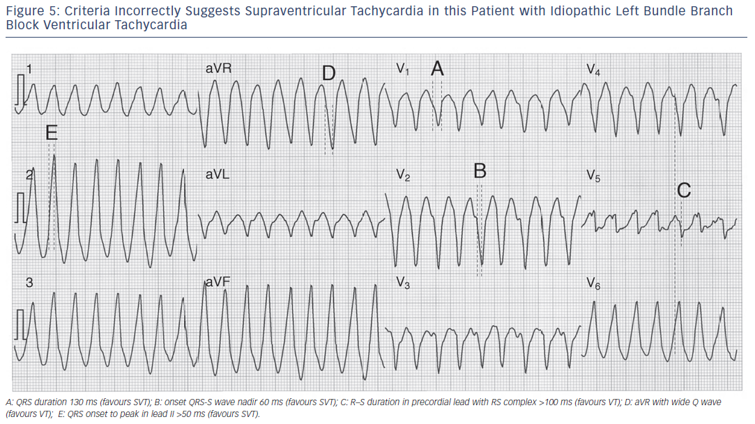 Figure 5: Criteria Incorrectly Suggests Supraventricular Tachycardia in this Patient with Idiopathic Left Bundle Branch Block Ventricular Tachycardia