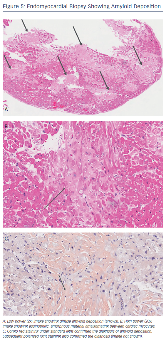 Endomyocardial Biopsy Showing Amyloid Deposition