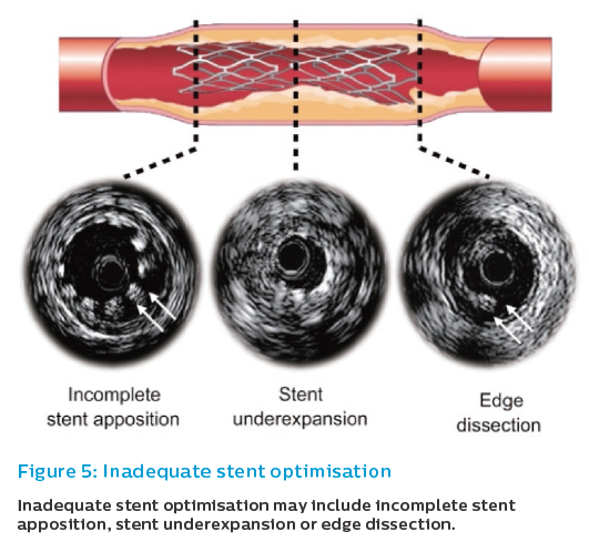 Figure 5: Inadequate stent optimisation