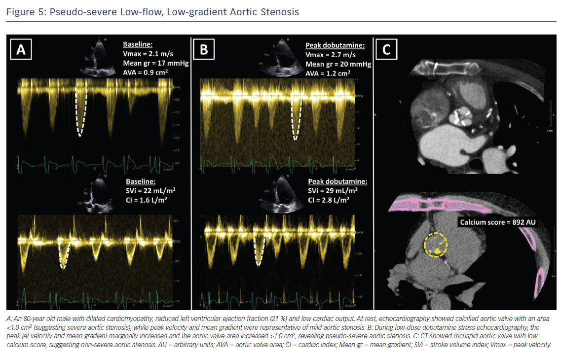 Figure 5: Pseudo-severe Low-flow, Low-gradient Aortic Stenosis