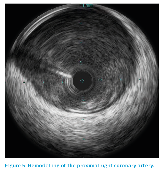 Figure 5. Remodelling of the proximal right coronary artery