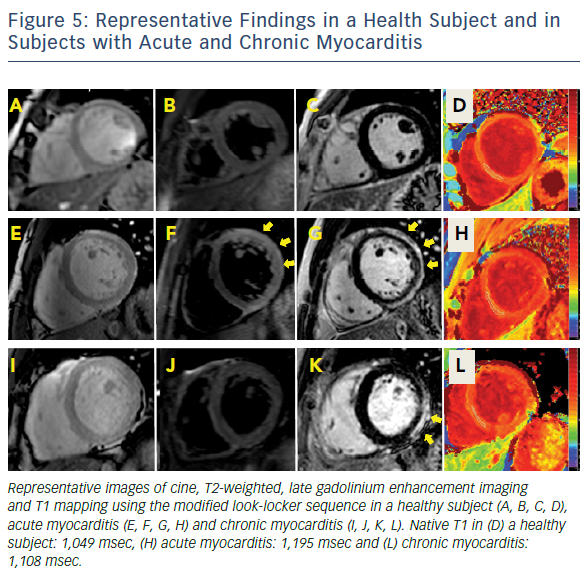 Figure 5: Representative Findings In A Health Subject And In Subjects With Acute And Chronic Myocarditis
