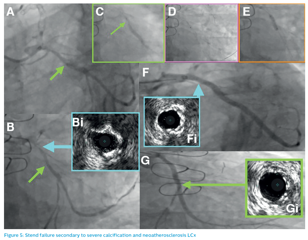 Stend failure secondary to severe calcification and neoatherosclerosis LCx