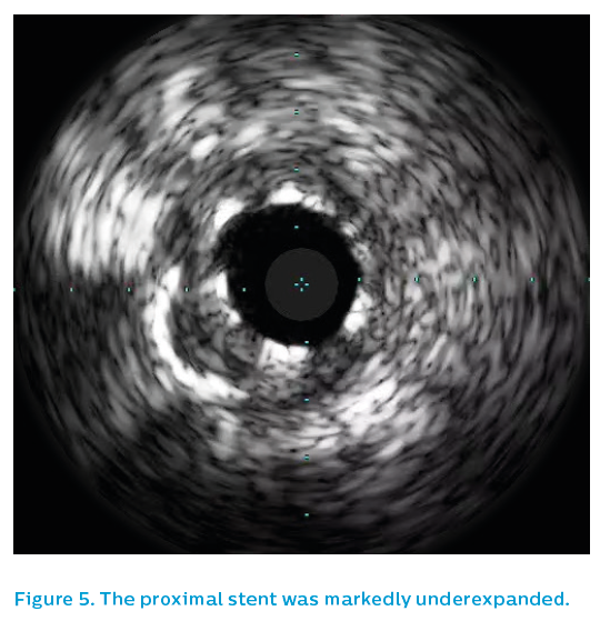 Figure 5. The proximal stent was markedly underexpanded