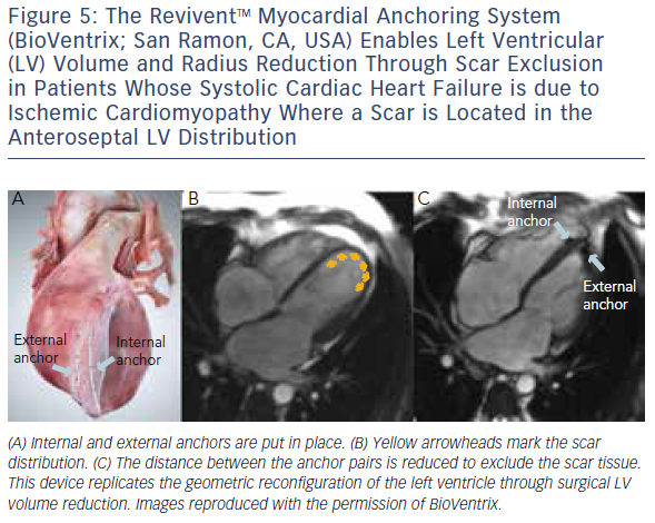 The ReviventTM Myocardial Anchoring System