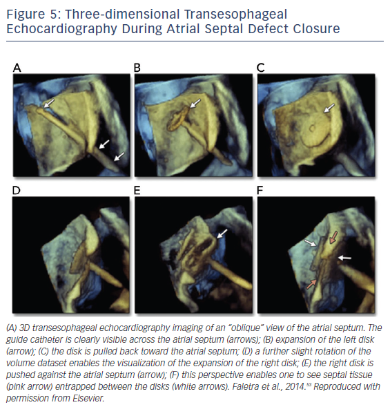 Figure 5: Three-dimensional Transesophageal Echocardiography During Atrial Septal Defect Closure
