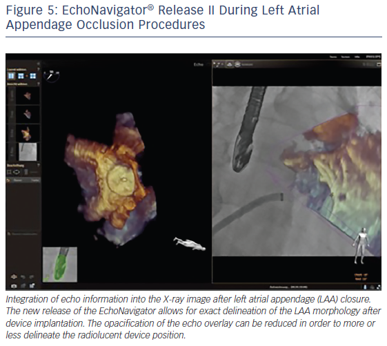 EchoNavigator® Release II During Left Atrial Appendage Occlusion Procedures