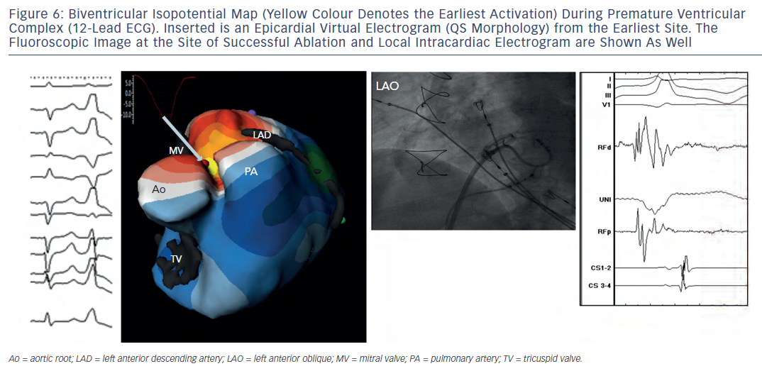Figure 6: Biventricular Isopotential Map (Yellow Colour Denotes the Earliest Activation) During Premature VentricularComplex (12-Lead ECG). Inserted is an Epicardial Virtual Electrogram (QS Morphology) from the Earliest Site. TheFluoroscopic Image at the Site of Successful Ablation and Local Intracardiac Electrogram are Shown As Well