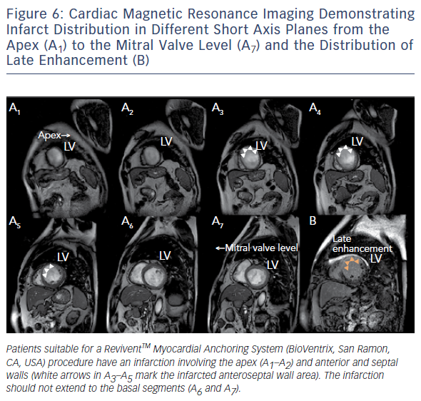 Figure 6: Cardiac Magnetic Resonance Imaging Demonstrating