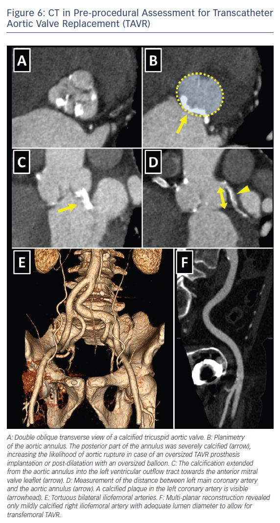 Figure 6: CT in Pre-procedural Assessment for Transcatheter Aortic Valve Replacement (TAVR)