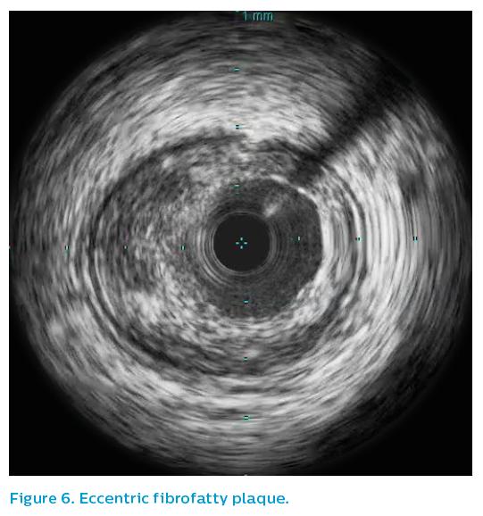 Figure 6. Eccentric fibrofatty plaque