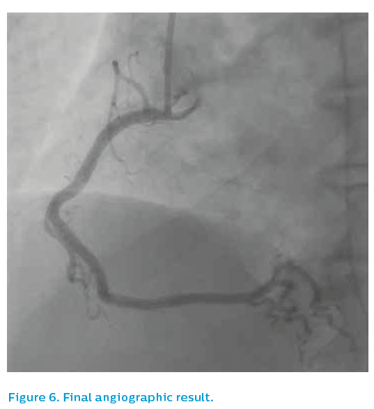 Figure 6. Final angiographic result