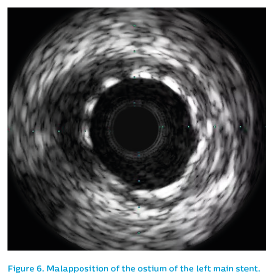 Figure 6. Malapposition of the ostium of the left main stent