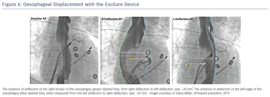 Figure 6: Oesophageal Displacement with the EsoSure Device