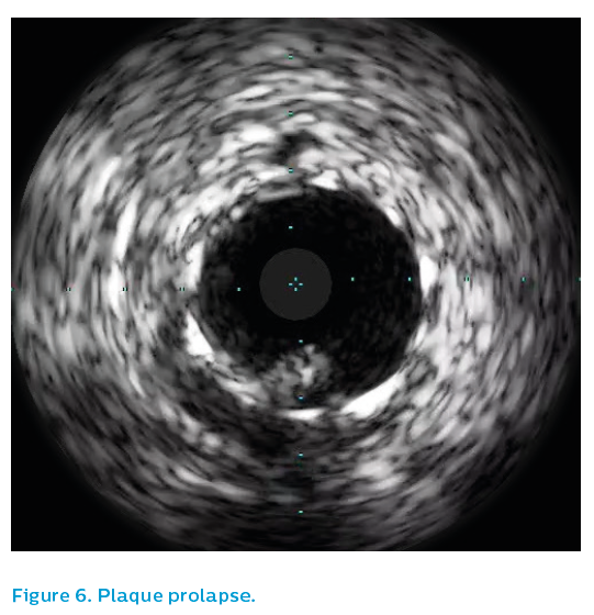 Figure 6. Plaque prolapse