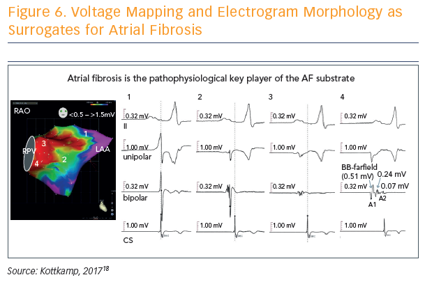 Figure 6. Voltage Mapping and Electrogram Morphology as Surrogates for Atrial Fibrosis
