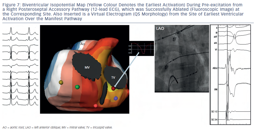 Figure 7: Biventricular Isopotential Map (Yellow Colour Denotes the Earliest Activation) During Pre-excitation froma Right Posteroseptal Accessory Pathway (12-lead ECG), which was Successfully Ablated (Fluoroscopic Image) atthe Corresponding Site. Also Inserted is a Virtual Electrogram (QS Morphology) from the Site of Earliest VentricularActivation Over the Manifest Pathway
