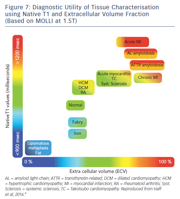 Figure 7: Diagnostic Utility of Tissue Characterisation using Native T1 and Extracellular Volume Fraction (Based on MOLLI at 1.5T)