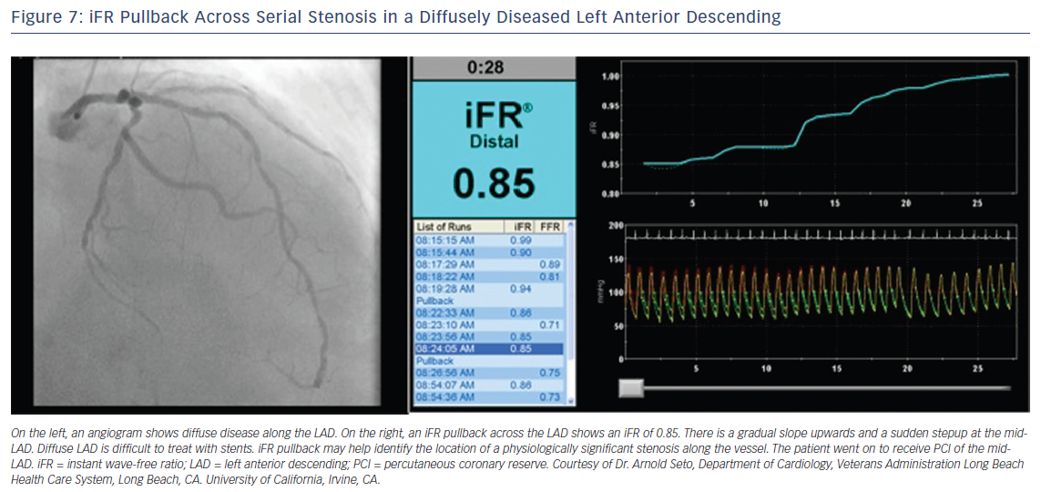 Figure 7: iFR Pullback Across Serial Stenosis in a Diffusely Diseased Left Anterior Descending