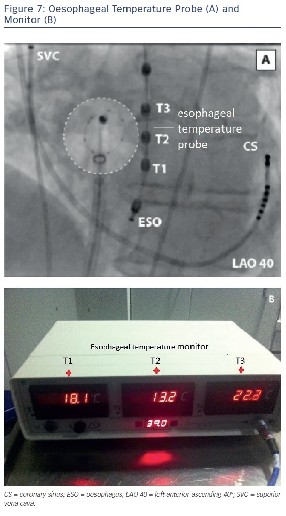 Figure 7: Oesophageal Temperature Probe (A) and Monitor (B)
