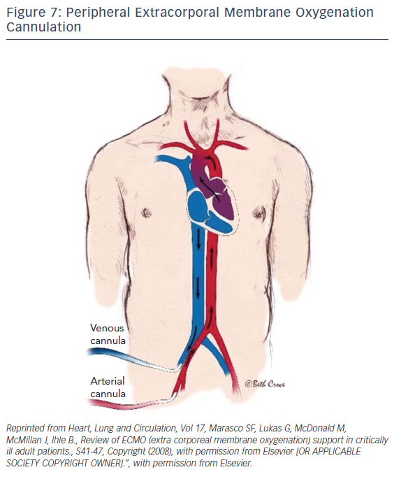 Figure 7: Peripheral Extracorporal Membrane Oxygenation Cannulation