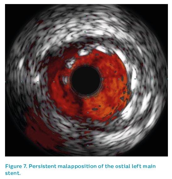 Figure 7. Persistent malapposition of the ostial left main stent