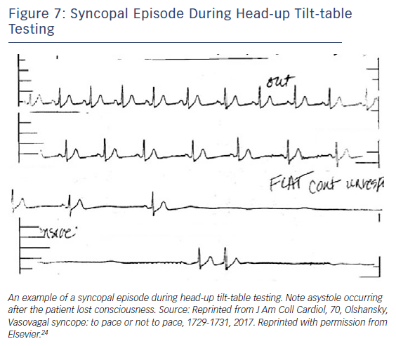 Figure 7: Syncopal Episode During Head-up Tilt-table Testing