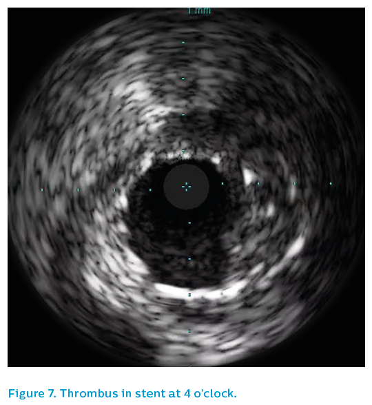 Figure 7. Thrombus in stent at 4 o'clock