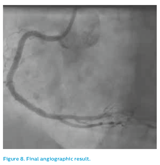 Figure 8. Final angiographic result