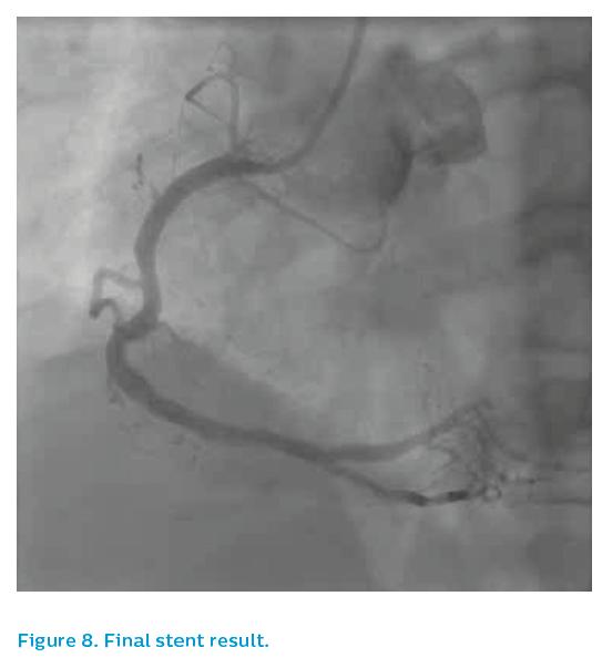 Figure 8. Final stent result