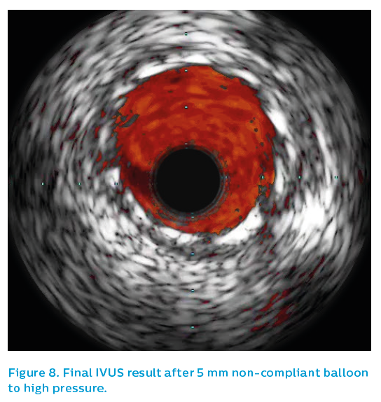 Figure 8. Final IVUS result after 5 mm non-compliant balloon to high pressure