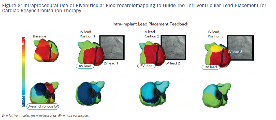 Figure 8: Intraprocedural Use of Biventricular Electrocardiomapping to Guide the Left Ventricular Lead Placement forCardiac Resynchronisation Therapy