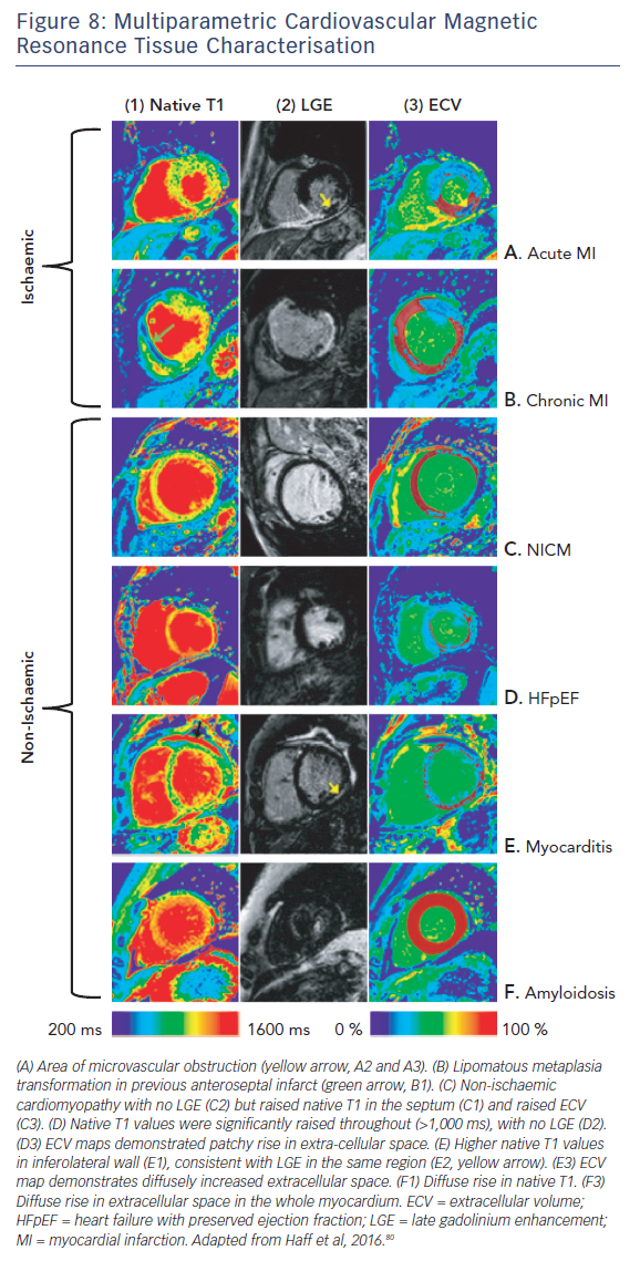 Figure 8: Multiparametric Cardiovascular Magnetic Resonance Tissue Characterisation