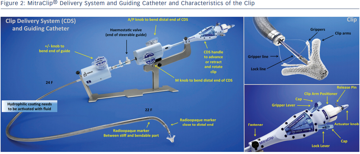 MitraClip® Delivery System and Guiding Catheter and Characteristics of the Clip