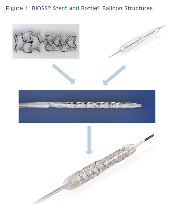 Figure 1: BiOSS® Stent and Bottle® Balloon Structures