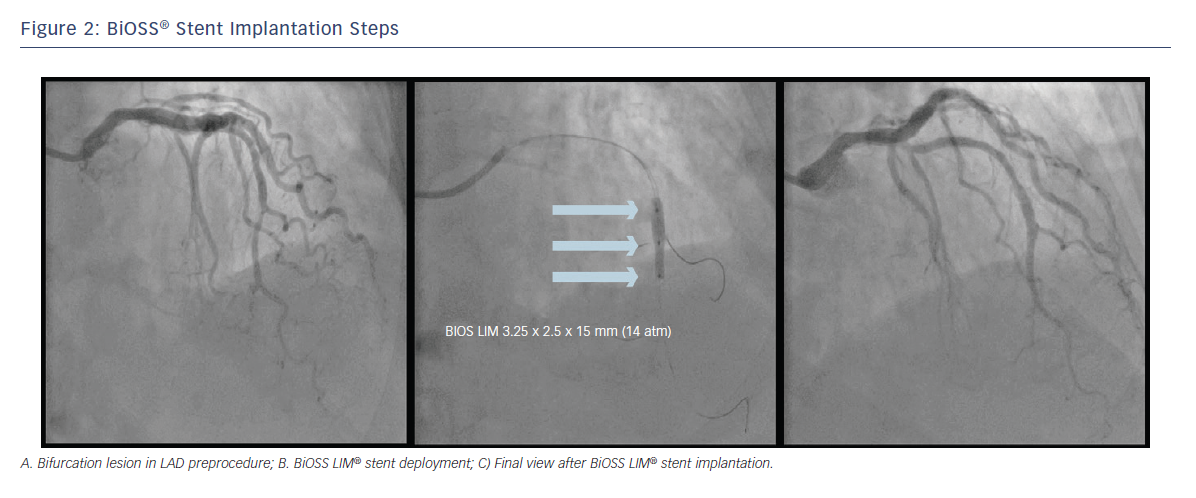 Figure 2: BiOSS® Stent Implantation Steps BIOS