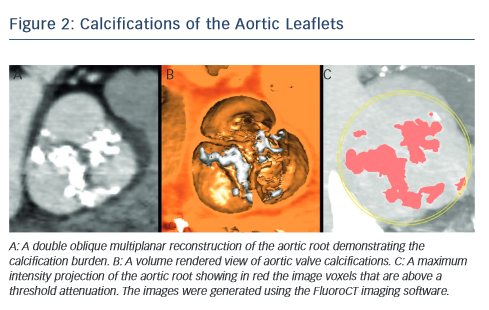 Figure of Calcifications of the Aortic Leaflets