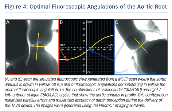 Optimal Fluoroscopic Angulations of the Aortic Root