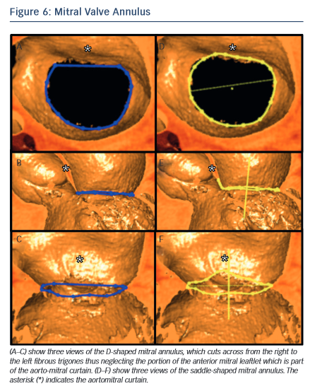 Image of Mitral Valve Annulus