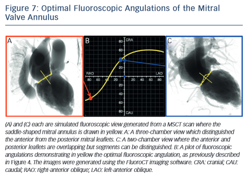 Optimal Fluoroscopic Angulations of the Mitral Valve Annulus