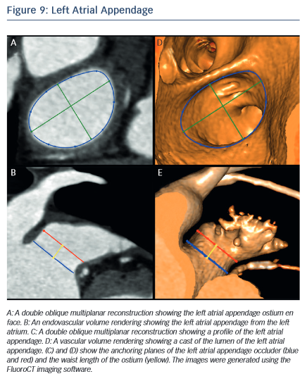 Image of Left atrial Appendage