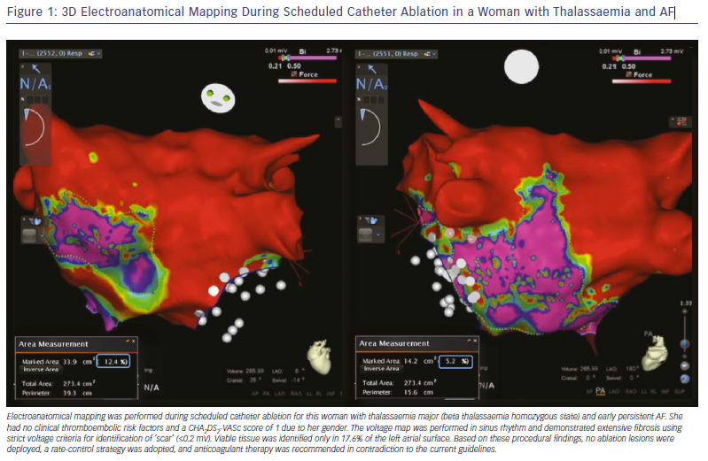 3D Electroanatomical Mapping During Scheduled Catheter Ablation in a Woman
