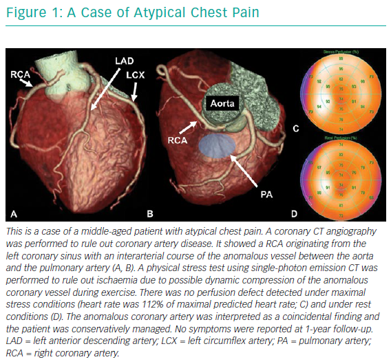 A Case Of Atypical Chest Pain