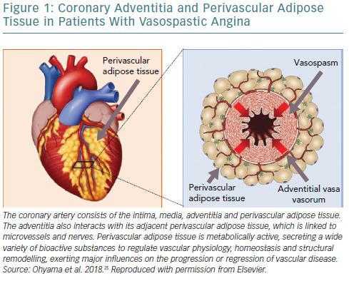 Coronary Adventitia And Perivascular Adipose Tissue In Patients With Vasospastic Angina